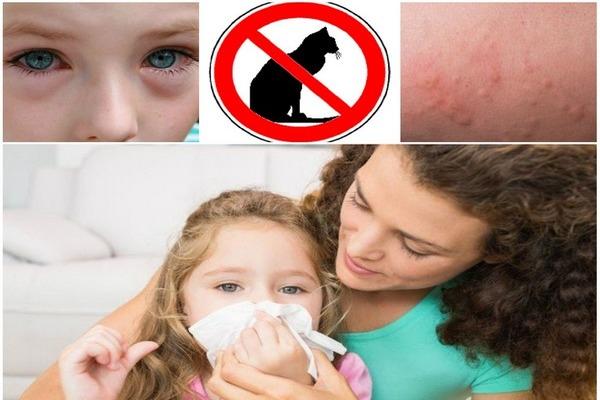 Лечение аллергических реакций
